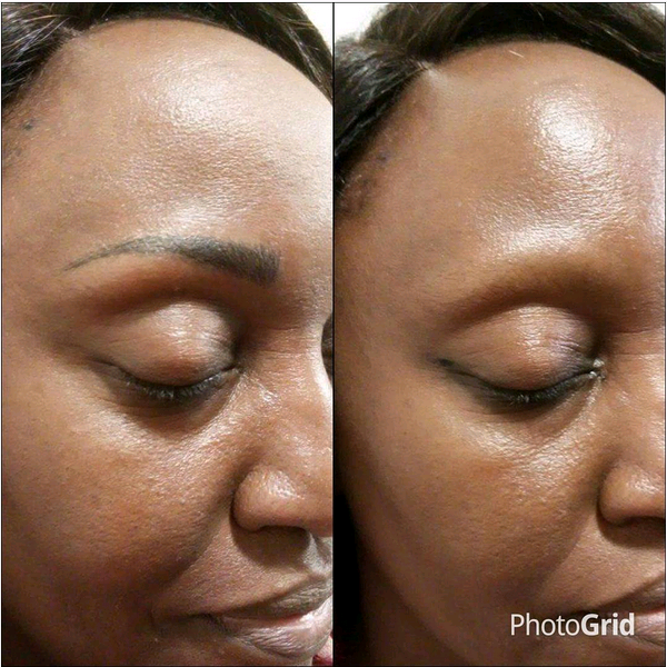 Micro pigmentation sur peau noire des sourcils visibles et naturels - Tatouage blanc sur peau noir ...